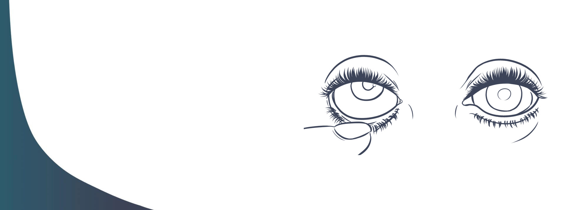 Cómo retirar y ponerla prótesis ocular